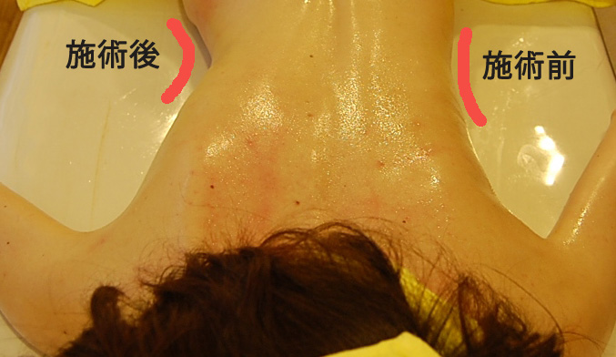 活性リンパオイルマッサージ 施術前と施術後のくびれの違い